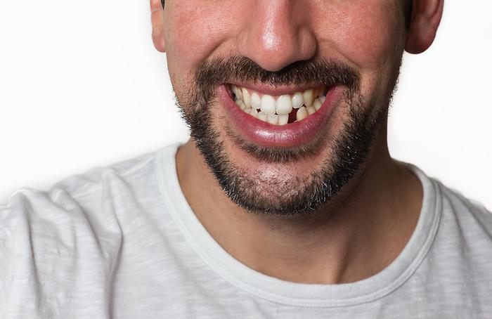 closeup man with missing tooth