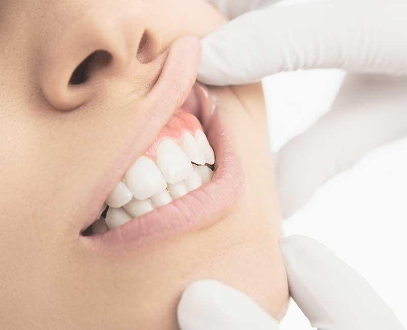 closeup image dentist touching patient mouth