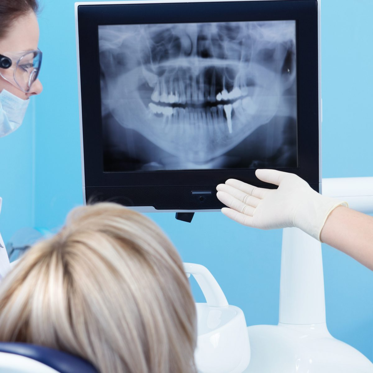 dentist looking on x-ray